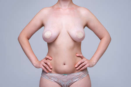 Photo for Large female breasts with nipple stickers on gray background, stretch marks on the skin, body care concept, close-up studio shot - Royalty Free Image