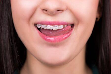 Photo pour Smiling happy woman mouth with tongue and braces - image libre de droit