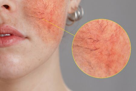 Foto de Cosmetology and rosacea. Close-up portrait of female face, cheeks with severe inflammation, blood vessels and rosacea. - Imagen libre de derechos
