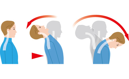 Ilustración de Movement of the neck due to impact from behind. Whiplash injury. - Imagen libre de derechos