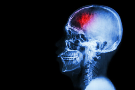 Photo pour \Stroke\ (cerebrovascular accident). Film x-ray skull lateral with stroke and blank area at left side - image libre de droit