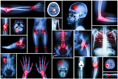 Collection x-ray multiple disease (arthritis,stroke,brain tumor,gout,rheumatoid,kidney stone,pulmonary tuberculosis,osteoarthritis knee, etc)