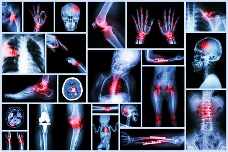 Collection X-ray multiple human s organ & orthopedic surgery & Multiple disease (Pulmonary tuberculosis , Gout , Rheumatoid arthritis ,Spondylosis , Fracture bone , Stroke , Brain tumor , etc)