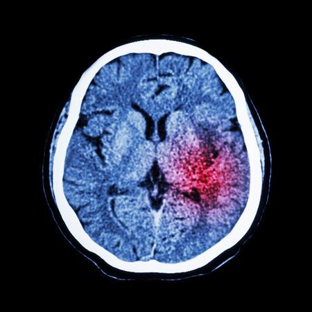 Photo pour CT scan of brain show Ischemic Stroke or Hemorrhagic Stroke - image libre de droit