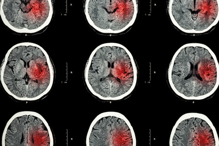 Photo pour CT scan of brain with red area ( Imaging for hemorrhagic stroke or Ischemic stroke ( infarction ) concept ) - image libre de droit