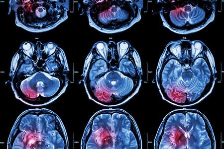Film MRI ( Magnetic resonance imaging ) of brain ( stroke , brain tumor , cerebral infarction , intracerebral hemorrhage )  ( Medical , Health care , Science Background ) ( Cross section of brain )