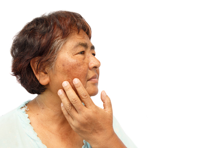 Photo pour old rural woman with blemish , acne , mole and wrinkle on her face ( isolated background and blank area at right side ) ( anti-aging concept ) - image libre de droit