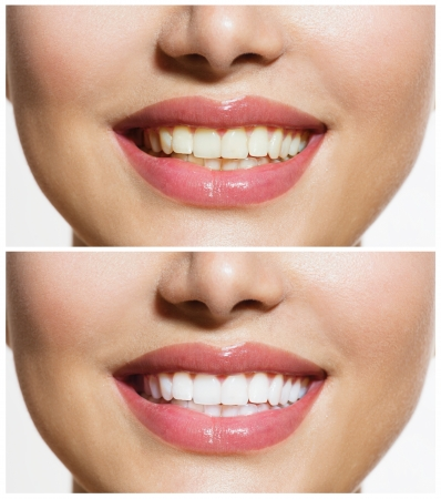 Woman Teeth Before and After Whitening  Oral Care の写真素材