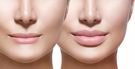 Foto de Before and after lip filler injections. Lips closeup over white - Imagen libre de derechos
