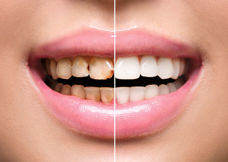 Woman's teeth before and after whitening. Oral care