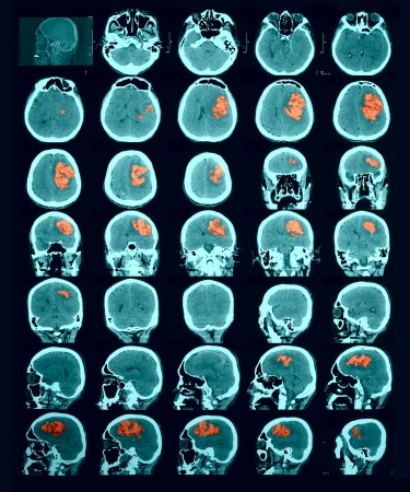 Photo pour CT scan of the brain. Hemorrhagic stroke. red us to identify the lesion focus. Documentary photography. Information for professionals. - image libre de droit