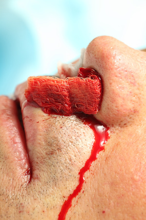 Nasal bleeding patient in hospital.