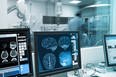 Photo pour Study, visualization and practice with the human brain in x-ray laboratory. - image libre de droit