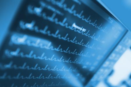 Foto de Heart activity on monitor in intensive care unit - Imagen libre de derechos