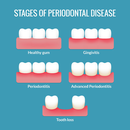 Stages of periodontal disease from healthy gums to gingivitis, periodontitis and tooth loss. Modern medical infographic chart. Vector illustration.