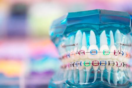 Photo pour orthodontic model and dentist tool - demonstration teeth model of varities of orthodontic bracket or brace - image libre de droit