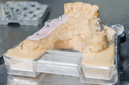 Metal structure of a dental crown or bridge in the lab.