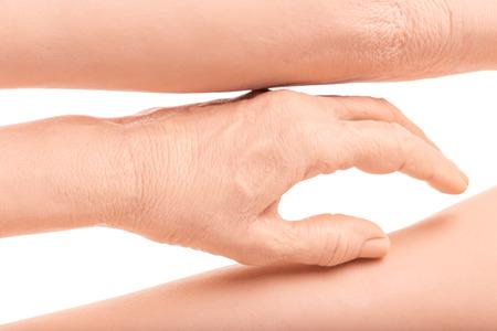 Photo pour group silicone prosthesis hands, medicine pink implants for person - image libre de droit