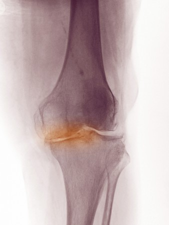 X-ray of the knee of a 83 year old woman showing degenerative arthritis.  This woman was scheduled for a knee replacement.