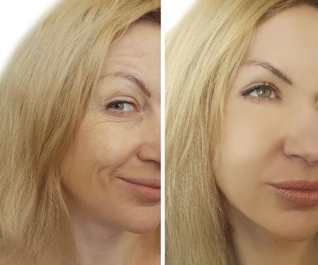 Foto de face woman wrinkles before and after - Imagen libre de derechos