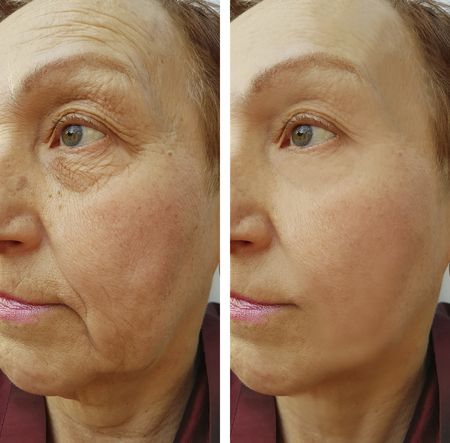 Photo pour face woman elderly wrinkles before and after - image libre de droit
