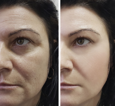 Photo pour woman wrinkles before and after procedures - image libre de droit