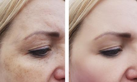 Foto de female eye wrinkles before and after treatments - Imagen libre de derechos