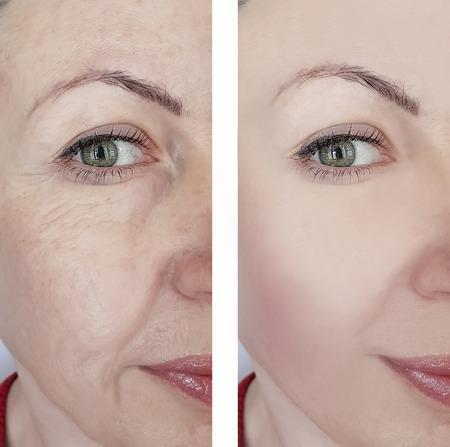 Photo pour woman wrinkles before and after treatments - image libre de droit