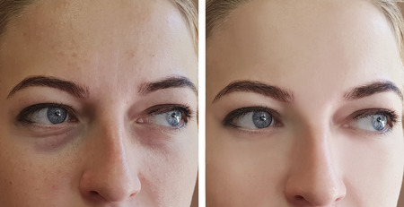Photo pour girl wrinkles eyes before and after procedures - image libre de droit