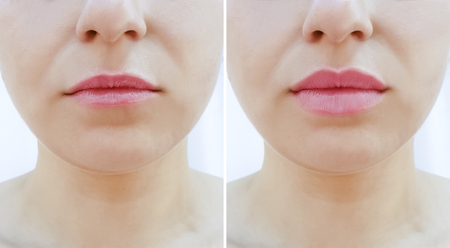 Photo pour girl lips before and after augmentation - image libre de droit
