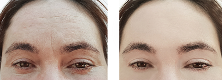 girl wrinkles eyes before and after procedures bags
