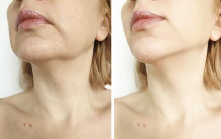 Photo pour woman double chin lift before and after procedures - image libre de droit