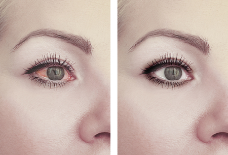 Photo pour woman red eye before and after procedures - image libre de droit