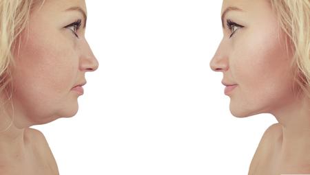 Photo pour woman double chin sagging before and after - image libre de droit