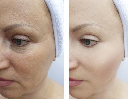 Photo pour woman wrinkles before and after - image libre de droit