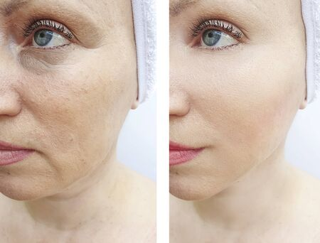 Photo pour woman face wrinkles before and after treatment - image libre de droit