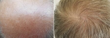 Foto de male baldness before and after treatment medicine - Imagen libre de derechos