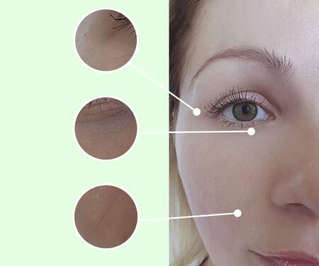 Photo pour woman wrinkles face before and after treatment - image libre de droit