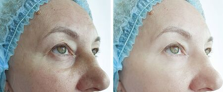 old woman wrinkles eyes before and after treatment