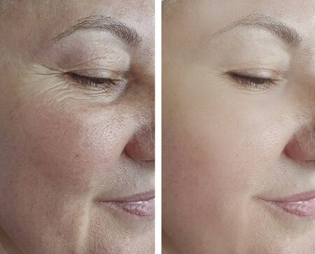 Photo for woman face wrinkles before and after treatment arrow - Royalty Free Image