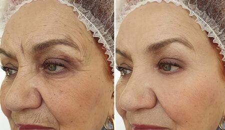 Photo pour face old woman wrinkles before and after treatment - image libre de droit