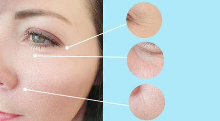 Photo pour woman face wrinkles before and after collage treatment - image libre de droit