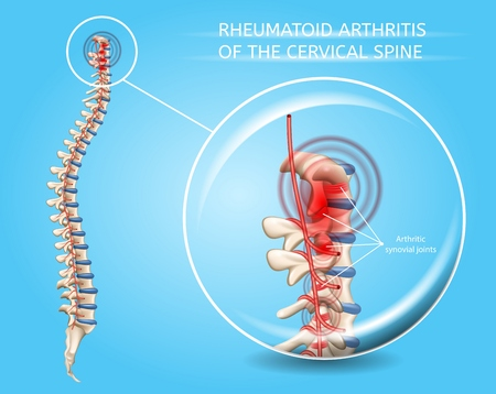 Illustration pour Rheumatoid Arthritis of Cervical Spine Vector Medical Scheme with Inflamed and Damaged Vertebral Column Synovial Joints Realistic Illustration. Human Musculoskeletal System Painful Diseases Concept - image libre de droit