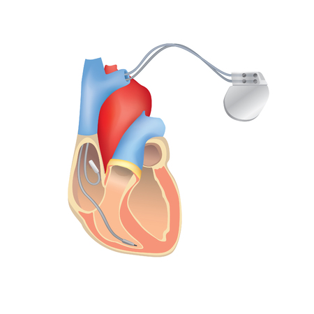 Illustration for Heart pacemaker in work. Human heart anatomy cross section with working implantable cardioverter defibrillator. - Royalty Free Image