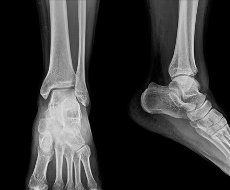 Close up x-ray of ankle