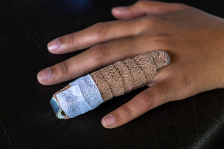 Aluminium Finger Splint on a Woman Ring Finger, Treatment Of Finger Injuries.
