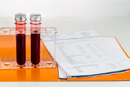 Blood sample in test tubes with health analysis screening report.