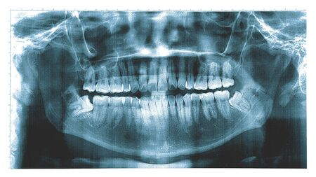 Photo pour X-ray of a human jaw , Panoramic dental X-Ray from a mouth with some tooth wisdom tooth crashed into a molar. - image libre de droit