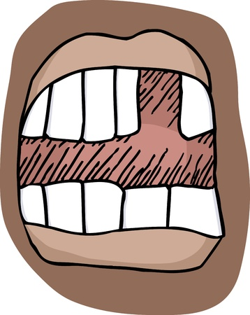 Close-up illustration of an open mouth with a missing tooth