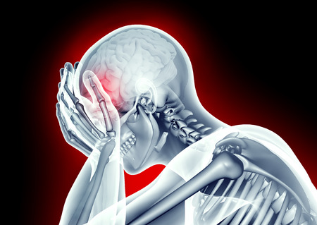 Photo pour x-ray image human head with headache pain - image libre de droit